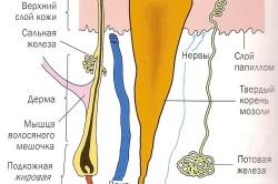 Мокрая мозоль на пятке: лечение
