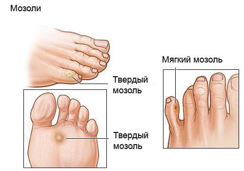 как лечить натоптыши на подошве ног фото