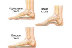 Плоскостопие - причина боли в стопе