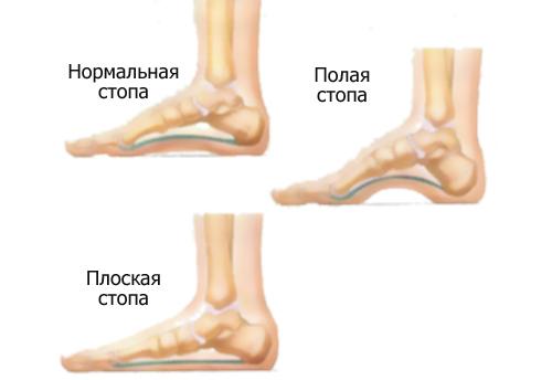 считаю, что почему болит стопа правой ноги при ходьбе считаю