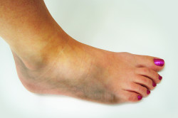 Появление гематомы при ушибе стопы