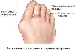 Поражение стопы артритом