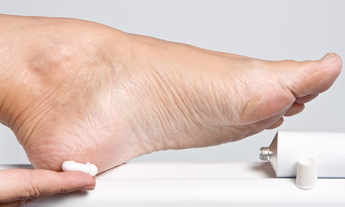 Проблема натоптышей на ногах