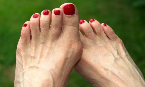 Проблема шишек на пальцах ног