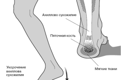 Бурсит ахиллова сухожилия - причина боли в пятках