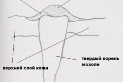 Схема строение натоптыша