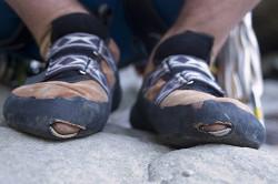 Ношение неудобной обуви - фактор развития грибка