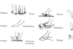 Упражнения для лечения косолапия