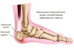 Появление боли в пятках при пяточной шпоре