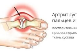 Схема артрита пальца стопы
