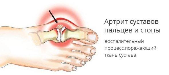 Препорат по лечению суставов