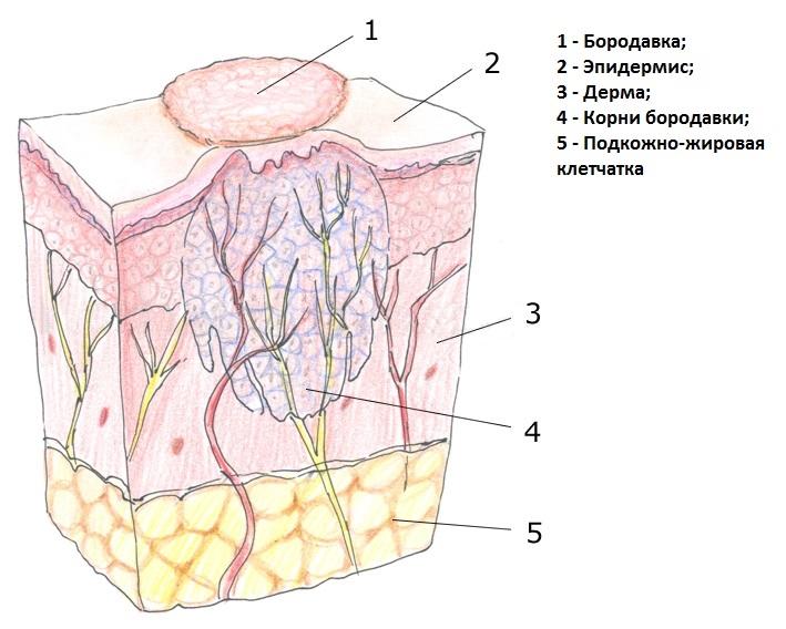 Фото остроконечные папилломы на половых органах фото
