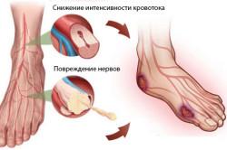 Схема диабетической стопы