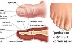 Строение ногтей и локализация грибковой инфекции на ногтях