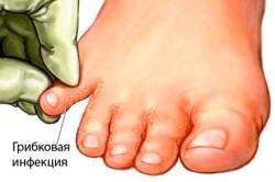 Шелушение - симптом грибка стопы