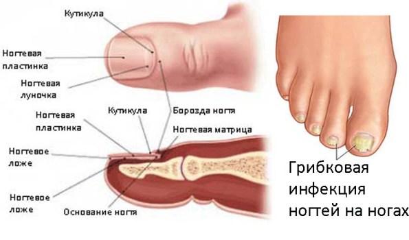 Как определить грибок на ногах марганцовкой
