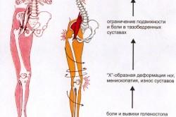Изменения при плоскостопии