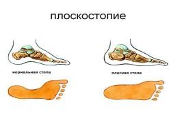 при плоскостопии какую обувь носить