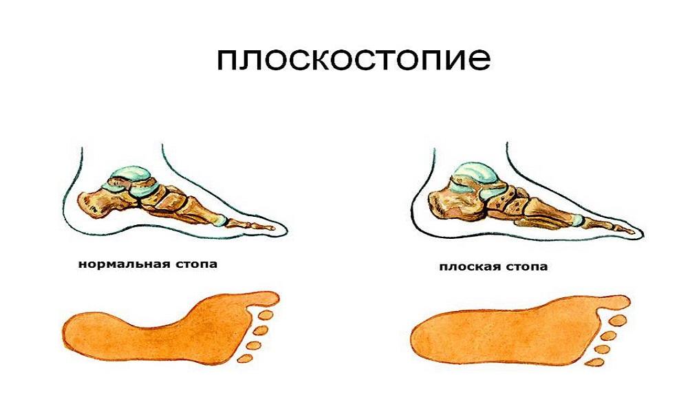 На ногте грибок что делать