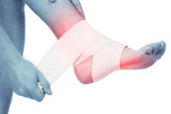 Повреждения стопы - причина плоскостопия