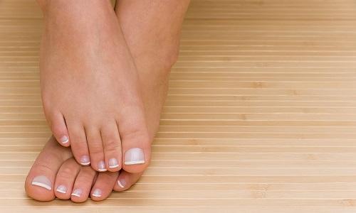 Проблема косточки на ноге
