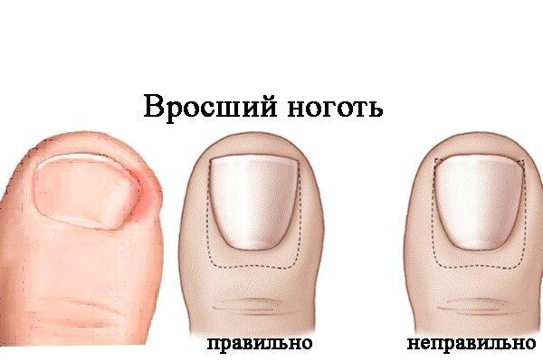 Грибок ногтей семян грейпфрута