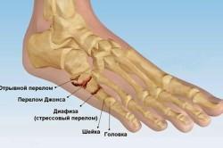 Виды переломов плюсневых костей стопы