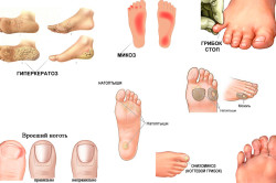 Виды заболеваний стопы и ногтей