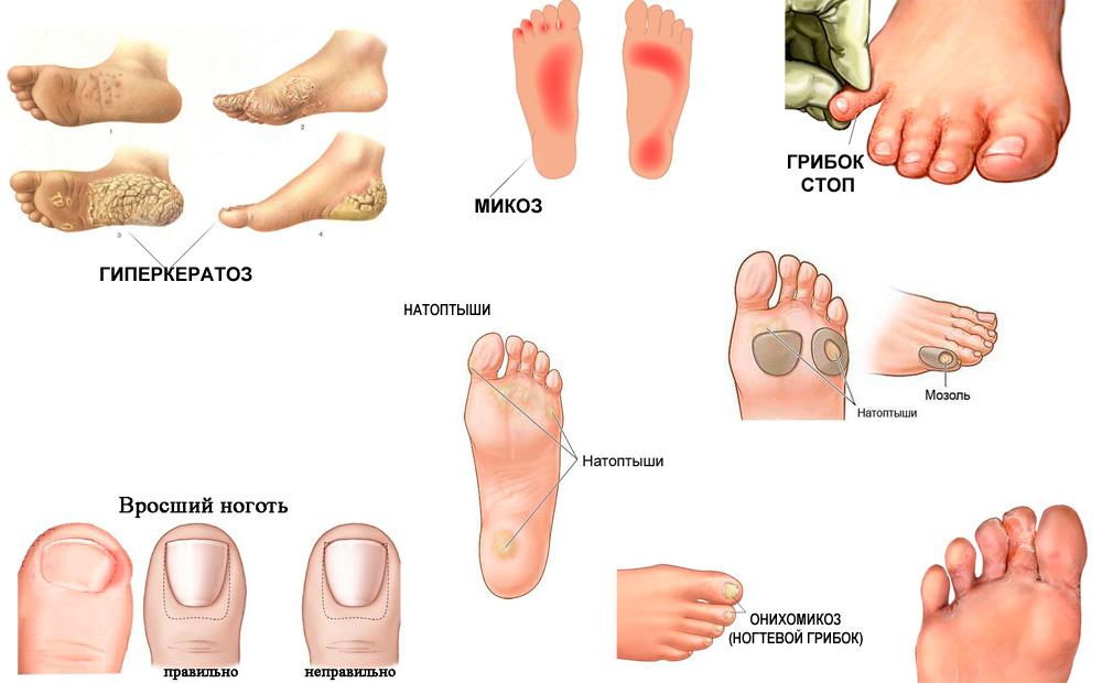 Виды грибков ногтей и описание