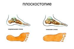 Плоскостопие - причина кератоза стопы