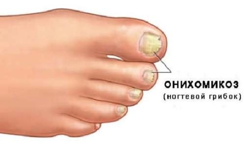 Онихомикоз — ногтевой грибок
