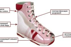 Ортопедическая обувь для профилактики и лечения плоскостопия