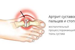Артрит суставов пальцев и стопы