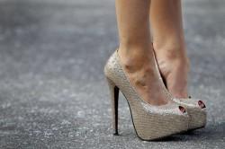 Неправильная обувь как причина возникновения артроза