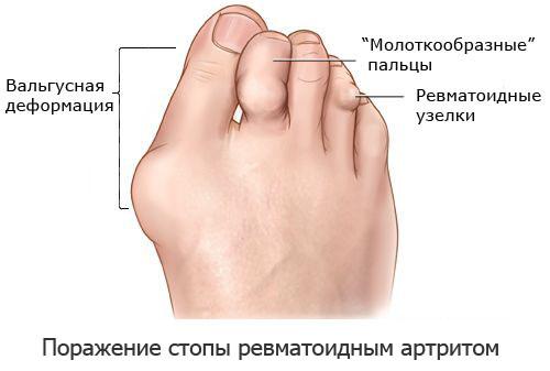 Артрит коленного сустава симптомы и лечение ребенок