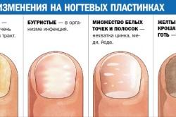 Определение заболевания по ногтям