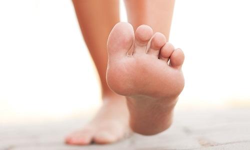 Проблема боли в пятке при ходьбе