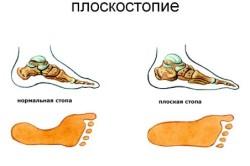 Вид стопы при плоскостопии