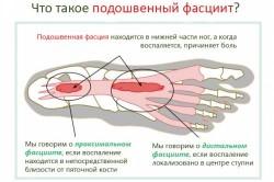 Подошвенный фасциит - причина боли в стопе