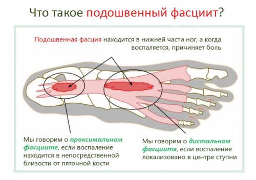 Что делать если болит косточка на лодыжке ноги
