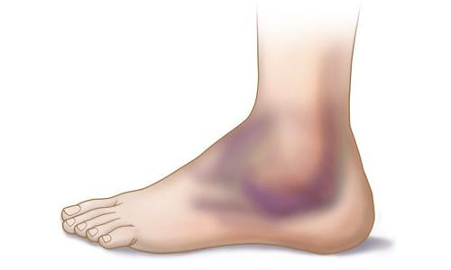 Повреждение сухожилий стопы