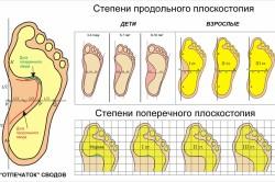 Степени разных типов плоскостопия