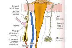 Схема стержневой мозоли