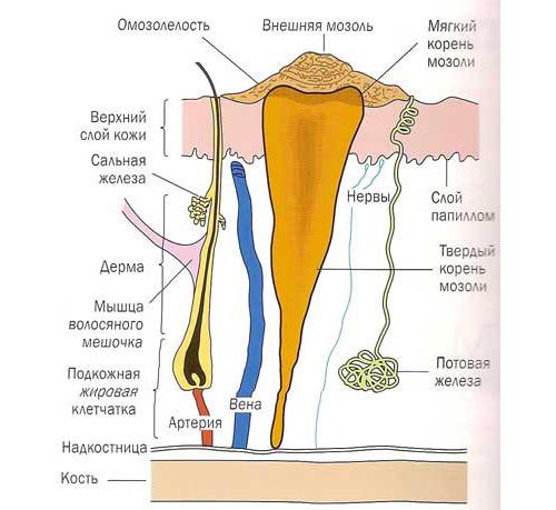 мозоль сухая со стержнем фото