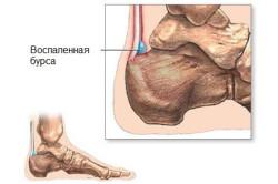 Бурсит - причина боли в пятке