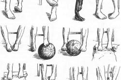 Специальные упражнения для профилактики и лечения варусной установке стоп