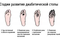 Стадии развития диабетической стопы