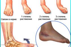 Степени повреждения связок стопы