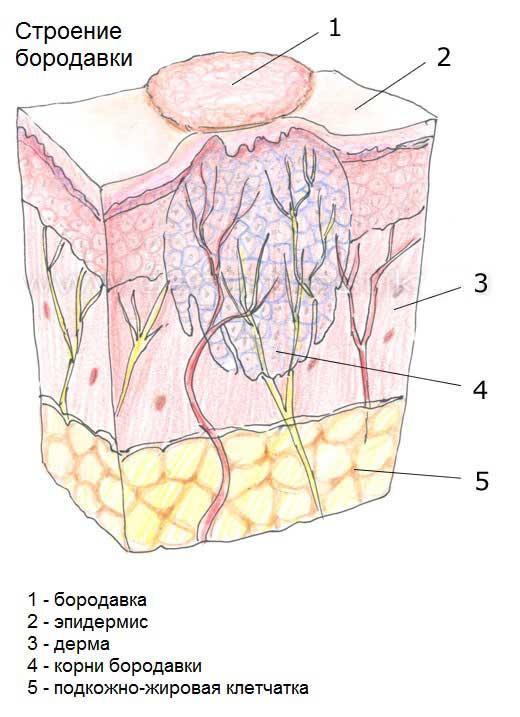 Папиллома кожи мкб 10
