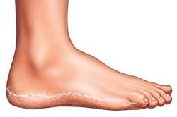 Аллергический дерматит - одна из причин сыпи на стопе